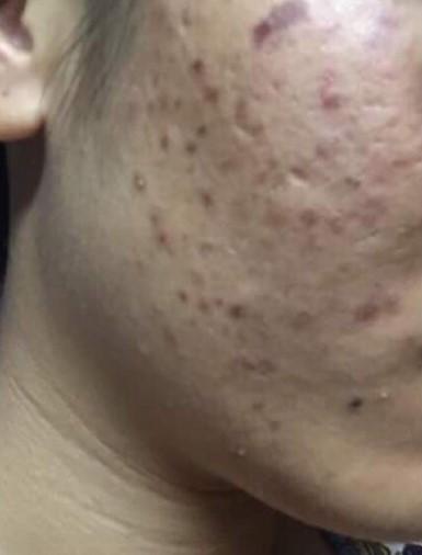 Acne hyperpigmentation with Tixel