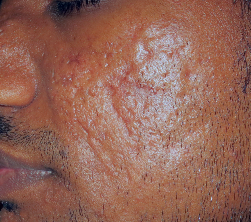 Acne scars type 6 skin with Tixel