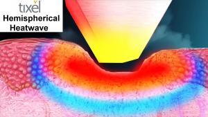 Tixel Spherical Heat Wave
