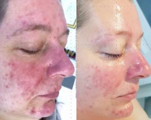 Tixel for acne & rosacea